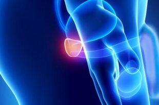 Rešite se problema sa mokrenjem usled uvećanja prostate